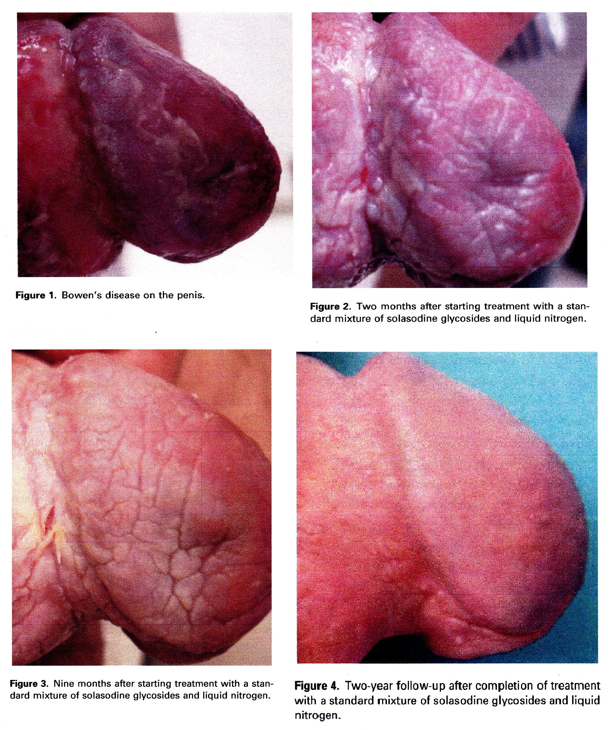 glans penis disease