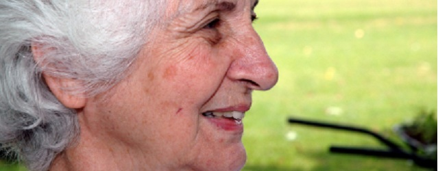Lady with actinic keratosis