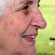 What is the difference between Age Spots, Sun Spots & Liver Spots? If you enjoy the sun and do not protect your skin, you may have experienced some changes in […]